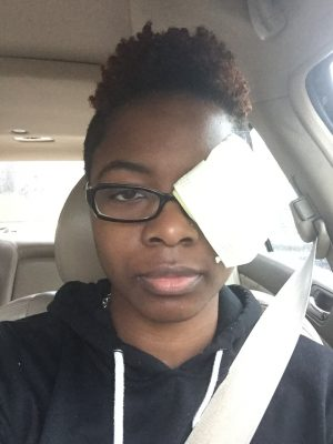 Double vision better with one eye closed. Used a napkin as an eye patch to help with myasthenia gravis double vision
